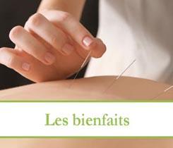 Les bienfaits de l'acupuncture